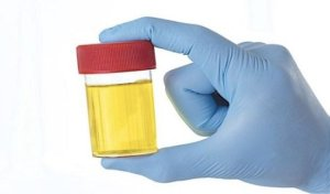 urine was used as mouthwash